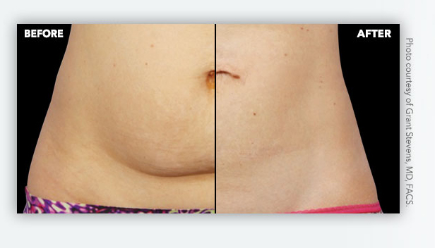 Fat cell removal Virginia